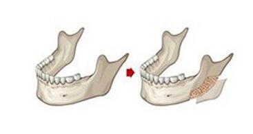 做下颌角整形手术有风险吗