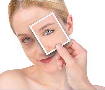 面部除皱需要多少钱 面部除皱方法有哪些