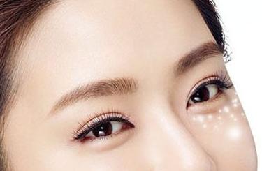 光子嫩肤能去眼袋去黑眼圈吗