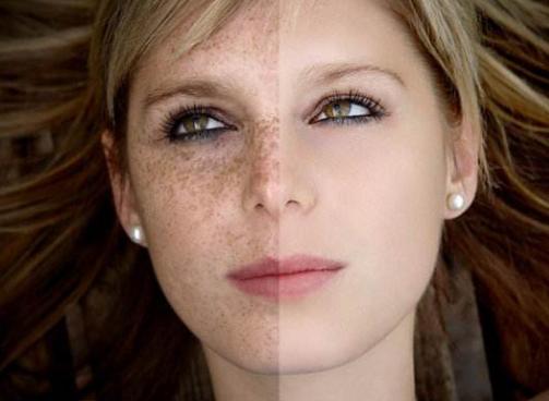 彩光嫩肤祛斑要多少钱 多久能看到效果