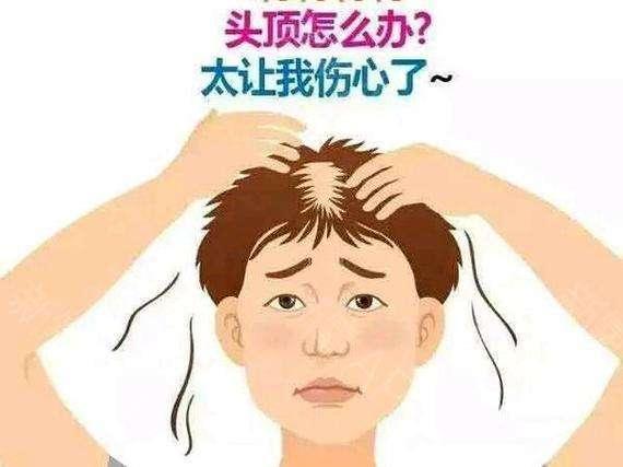头发种植价格按什么算 头发种植贵不贵