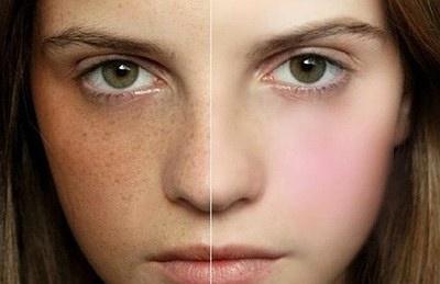 激光祛斑对皮肤有危害吗