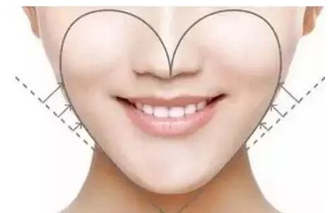 广州军美做面部吸脂安全吗