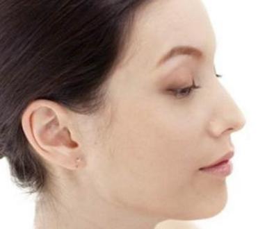 鹰钩鼻整形效果怎么样 会出现后遗症吗