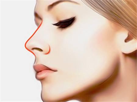 玻尿酸隆鼻多少钱 需要注射几次
