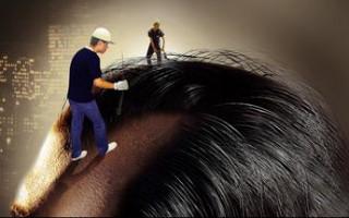 疤痕植发需要多长时间 有哪些禁忌症