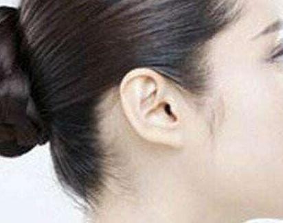 上海时光副耳切除的手术方法是什么
