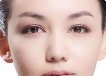 韩式双眼皮是永久的吗
