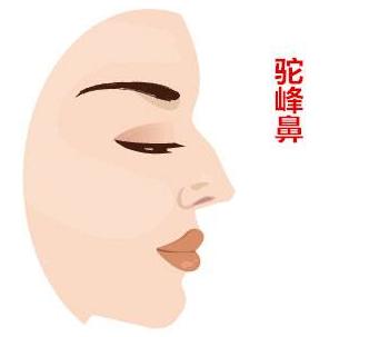 福州哲诺沃驼峰鼻矫正术后会有后遗症吗