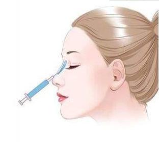 长沙协雅注射隆鼻材料都有哪些