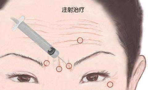 去抬头纹哪种方法效果更好