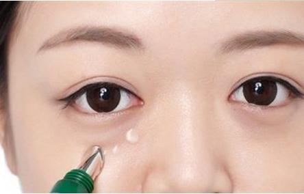 长沙晶肤自体脂肪填充泪沟可以维持多久