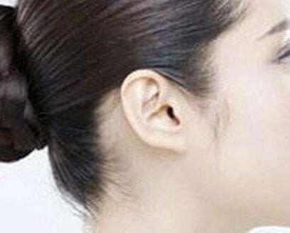 遵义韩美副耳切除手术后需要住院吗