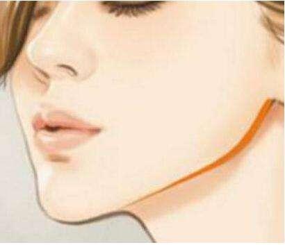 下颌角整形要多少钱 多久能消肿