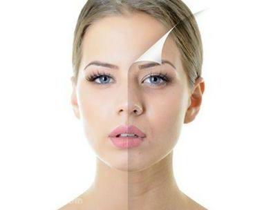 e光美容优势多多 让你的肌肤不再走上坡路