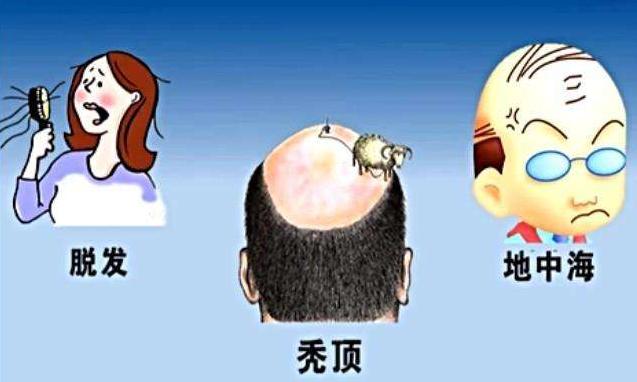 植发的危害有哪些 植发禁忌人群