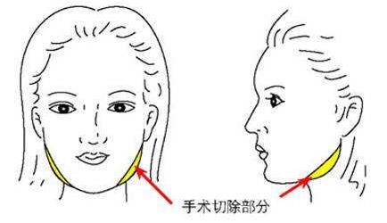 唐山惠美登磨骨瘦脸手术有风险吗