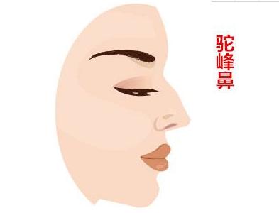 驼峰鼻如何矫正 手术过程疼不疼