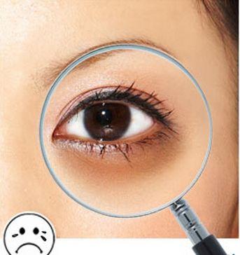 长春中妍激光治疗黑眼圈