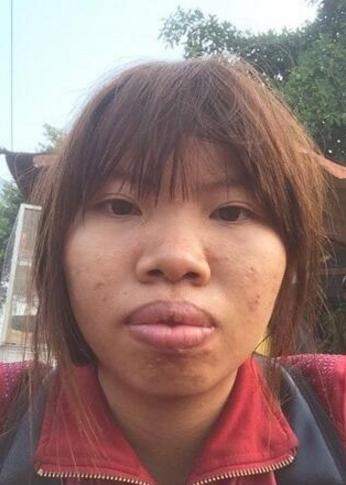 深圳雅涵整形越南女孩郭金凤整容 整形后嫁给富二代