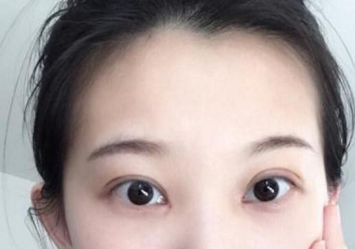 全切双眼皮可以修复么 全切双眼皮修复多少钱