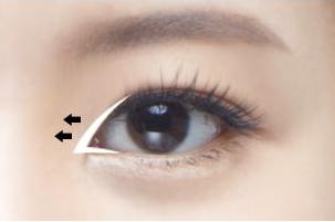 开内眼角会有疤痕吗 如何避免疤痕产生