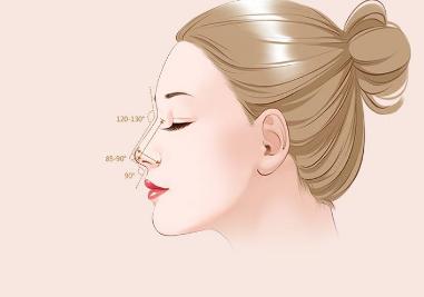 鼻部整形有哪些项目