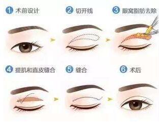 做双眼皮优惠活动 双眼皮方法大全