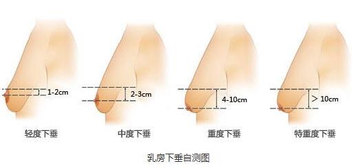 长沙做乳房上提术价格 术后效果