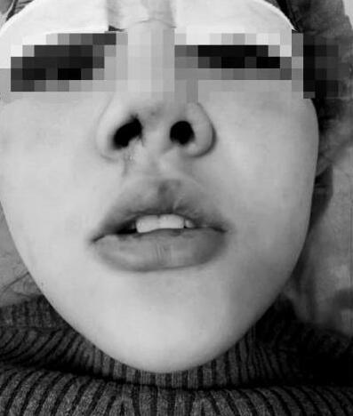 河南大学生小雪假体隆鼻后 俩鼻孔一大一小