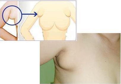 南平时光做副乳手术多少钱 有风险吗