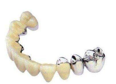 做全口种植牙齿的时间要多久