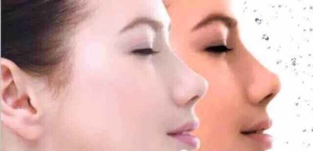 光子嫩肤过程是怎样的 安全吗