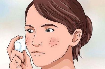激光治疗毛孔粗大效果如何 多少钱
