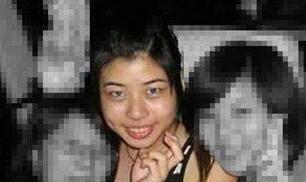 台湾女子自曝削骨整形的照片 网体:太神奇了