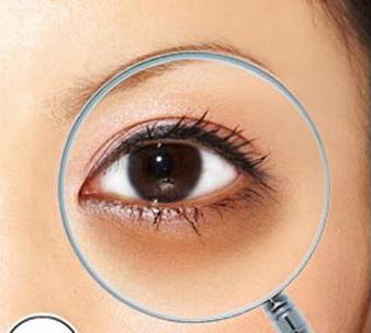 眼底脂肪重新排列去黑眼圈价格是多少