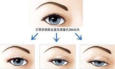 眼皮下垂怎么矫正 眼皮下垂矫正得多少钱