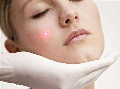 激光祛斑 扫除斑点不是问题