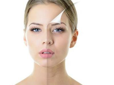 肌肤改善的方法哪种好
