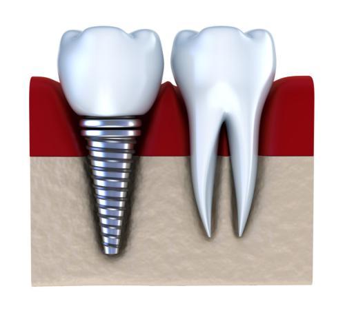 牙齿缺失怎么办 修复方法哪种好