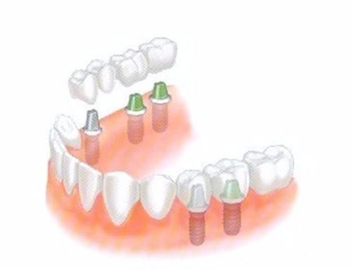 全口牙种植的费用是多少