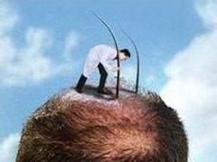 自体毛发移植效果如何 贵不贵