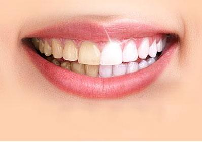 冷光美白牙齿能维持多久