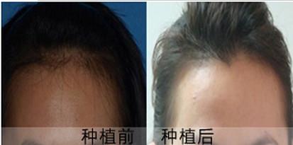 南京植发医院哪家好 美人尖种植的费用