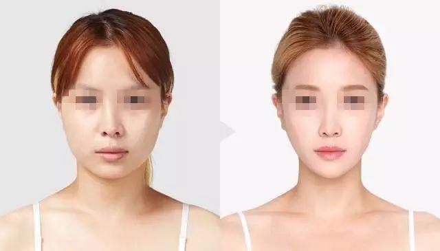 玻尿酸瘦脸效果好吗 免去手术痛苦且不留创伤