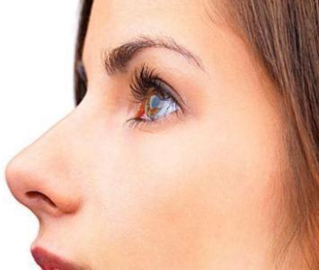 隆鼻失败多久可以重新修复?最好在这个时间段取出膨体