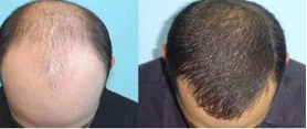 广州头发种植后  我也能去拍个洗发水广告