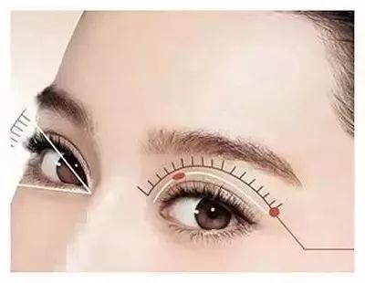 开眼角术前术后注意事项介绍 了解清楚事半功倍