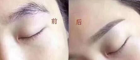 眉部整形七种方法介绍 可根据眉毛状况选择合适的