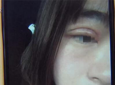 金女士花6700元割双眼皮 哟,这眼皮怎么肿了